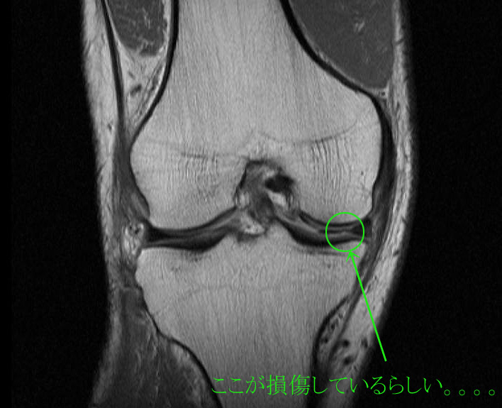 MRIの検査画像